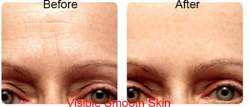 derm-exclusive-before-after